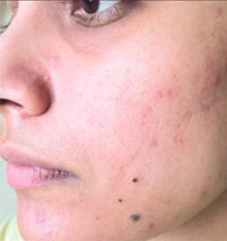 After Acne Treatment2