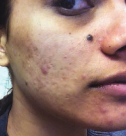 Before Acne Treatment1