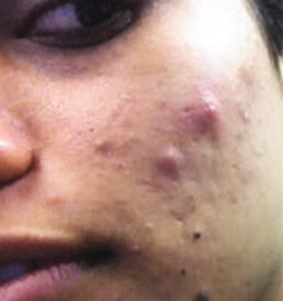 Before Acne Treatment2
