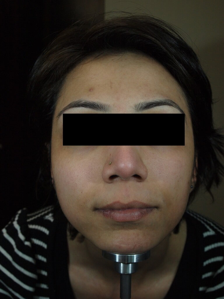 After-Chemical-Peel