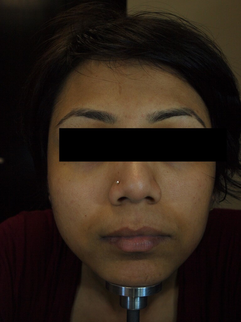 Before-Chemical-Peel