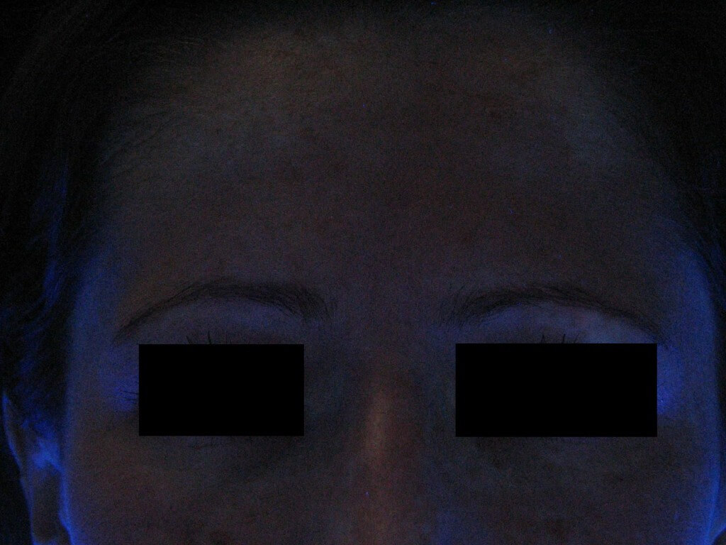 After Treatment in UV