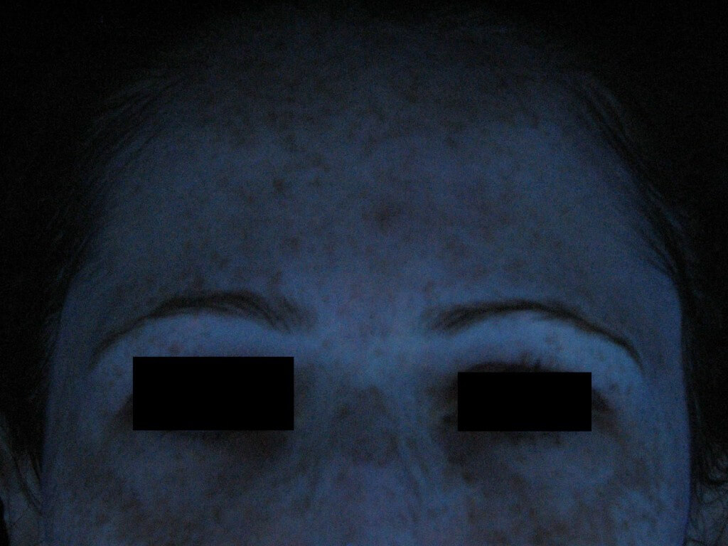 Before Treatment in UV