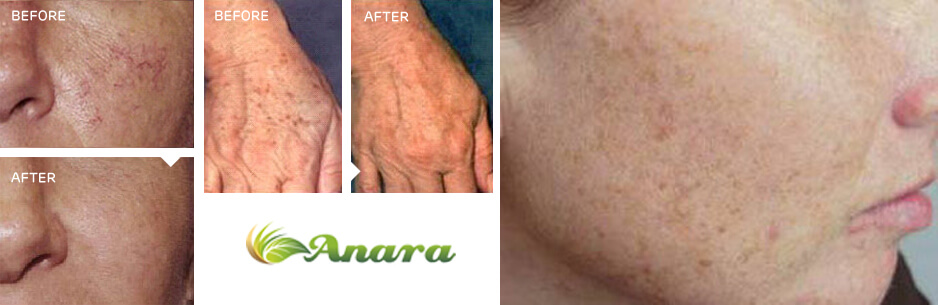 Permanent Laser Hair Reduction in NJ | Anara Medspa