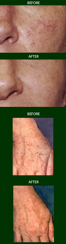 IPL Photofacial Photorejuvenation NJ